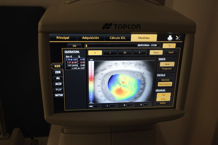 Análisis oftalmológicos