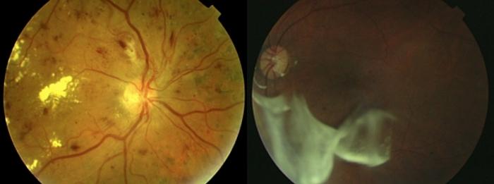 Signos clínicos de retinopatía diabética (izquierda) y tratamiento con triamcinolona intravítrea (derecha)