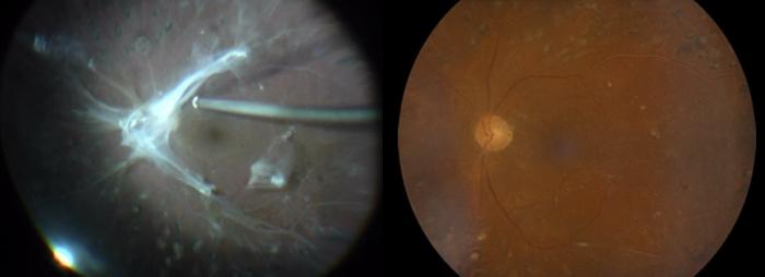 Ojo izquierdo de un paciente con tracción vitreomacular durante la cirugía (izquierda) y después de la intervención (derecha)