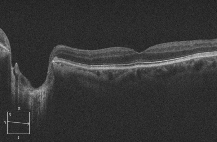 oct macula papila 5l