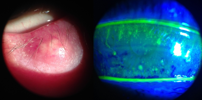 chalazion y queratitis sicca