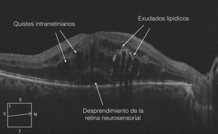 oct edema macular diabético