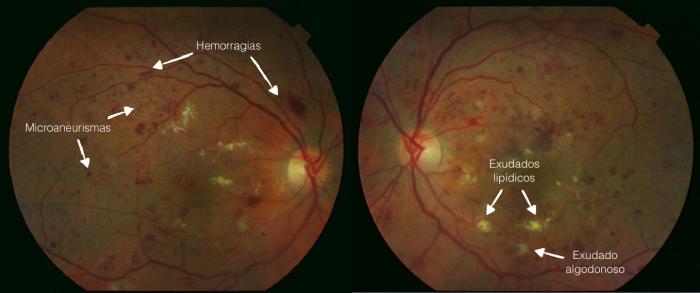 retinopatía diabética retinografías ao