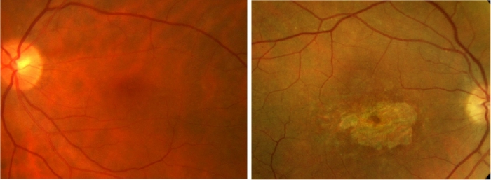 foto-19-retino-de-macula
